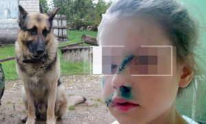 нападение собак +на людей